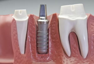 model for learning about dental implants