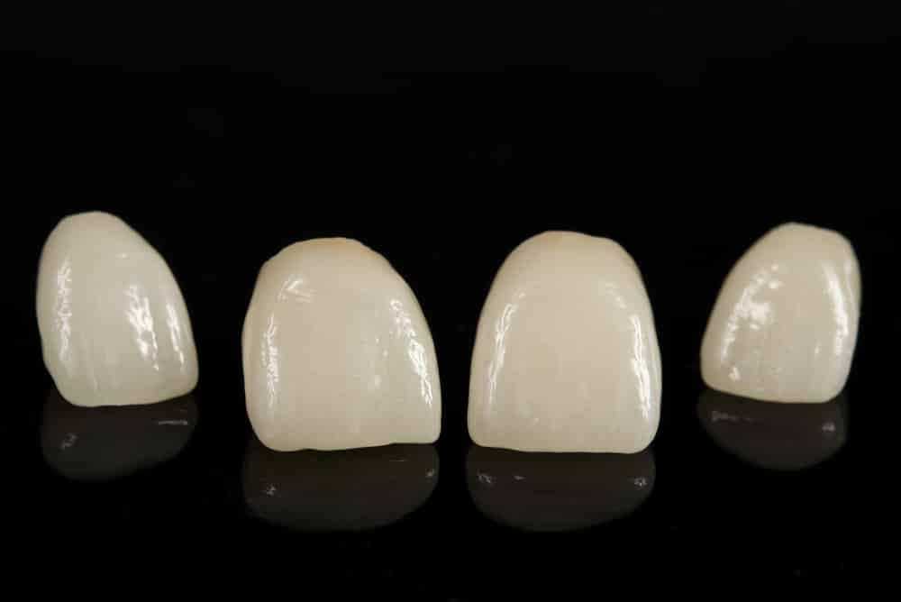 Dental Crowns Of Different Sizes Maple Grove Mn